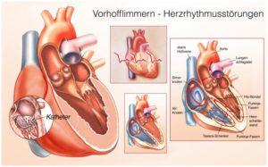 Herzinfarkt Anzeichen Herzrhythmusstörungen