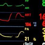 Man sollte auf Herzinfarkt Symptome reagieren